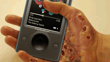 Dermatitis Outbreaks Linked To Zune Usage
